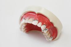 良い入れ歯と悪い入れ歯